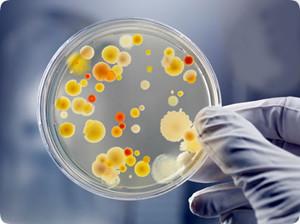bacteria on Petri dish puzzle